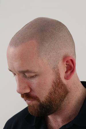 Hair Transplants | Scalp Micropigmentation | Derry